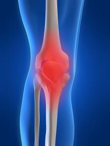Stem Cell Knee Arthritis
