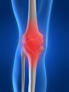 Stem Cell Knee Arthritis