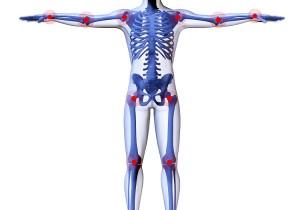 stem cells arthritis