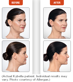 Kybella before and after 2